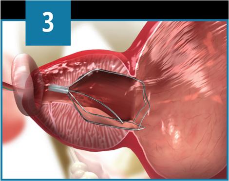 intervento prostata turp surgery