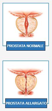 prostata di processo standard